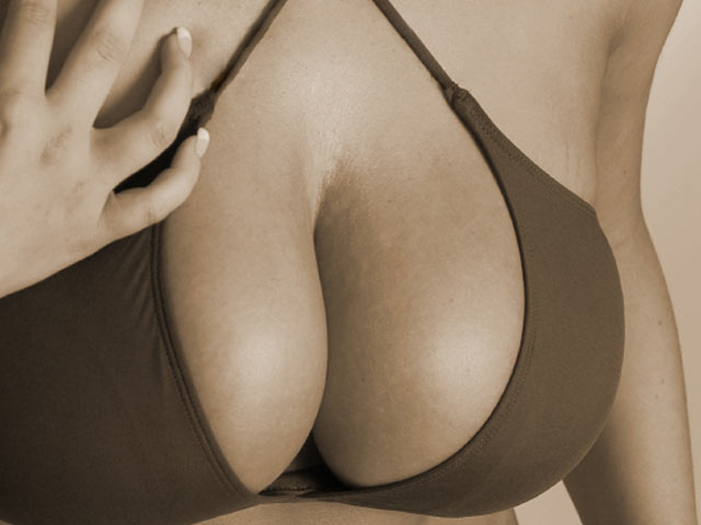 Curvy Breast Implants